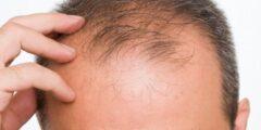 أسباب الصلع عند الرجال وعلاجه