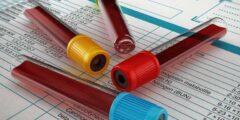معنى mcv في تحليل الدم