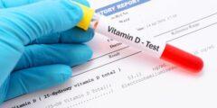 النسبة الطبيعية لفيتامين د في الجسم