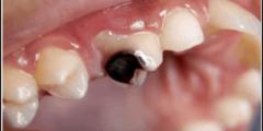 تفسير حلم تسوس الأسنان في المنام