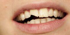 تفسير حلم تكسر الأسنان في المنام