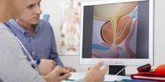 اسماء ادوية لعلاج احتقان البروستاتا